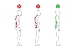 Our Stoke Chiropractor Highlights 10 Ways That Bad Posture Can Damage Your Health