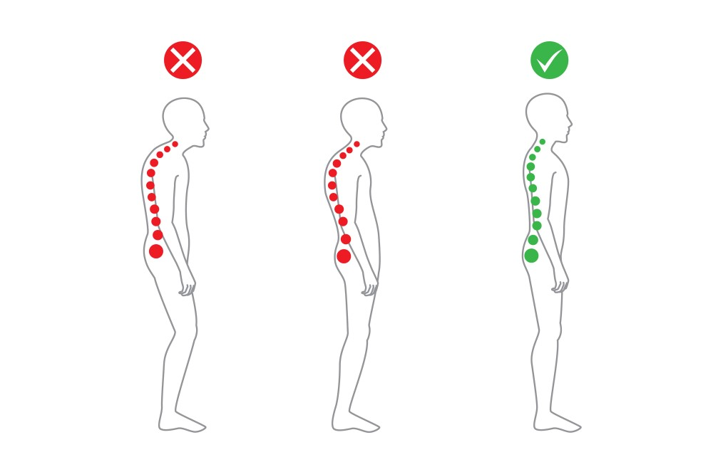 Posture advice from our stoke chiro