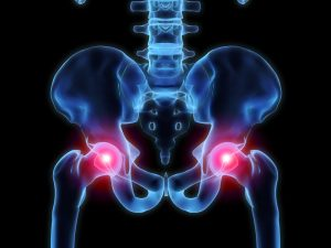 hip pain advice from our stoke on trent chiropractor